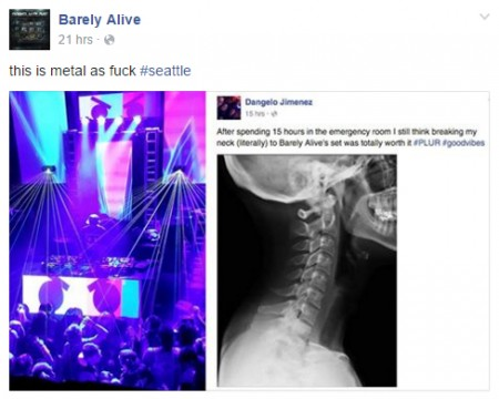 Hardcore Raver Literally Breaks His Neck At Barely Alive Show