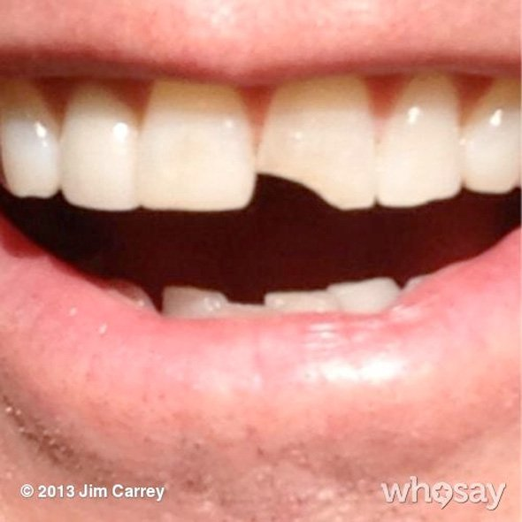 Jim Carrey Chipped His Tooth Again For Dumb And Dumber To